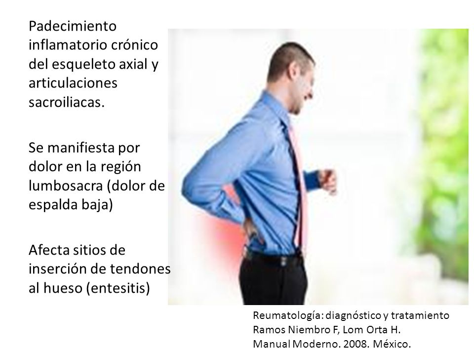 Padecimiento inflamatorio crónico del esqueleto axial y articulaciones sacroiliacas. Se manifiesta por dolor en la región lumbosacra (dolor de espalda