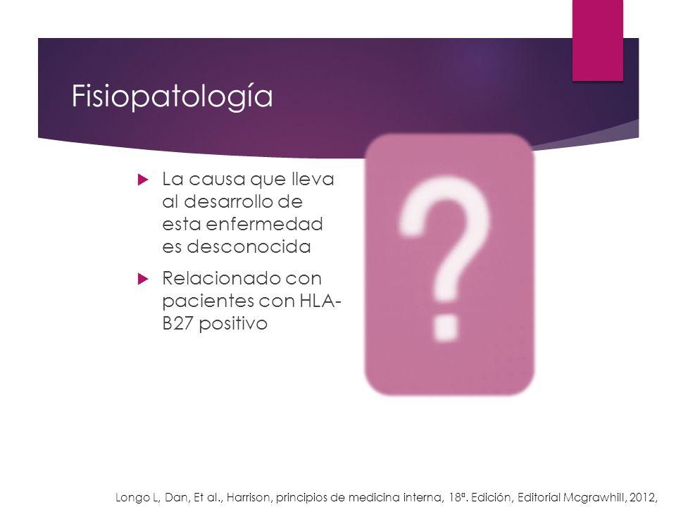 Fisiopatología La causa que lleva al desarrollo de esta enfermedad es desconocida Relacionado con pacientes con HLA- B27 positivo Longo L, Dan, Et al.