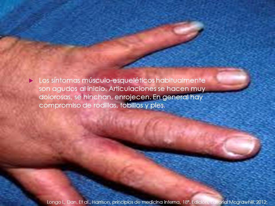 Los síntomas músculo-esqueléticos habitualmente son agudos al inicio. Articulaciones se hacen muy dolorosas, se hinchan, enrojecen. En general hay com