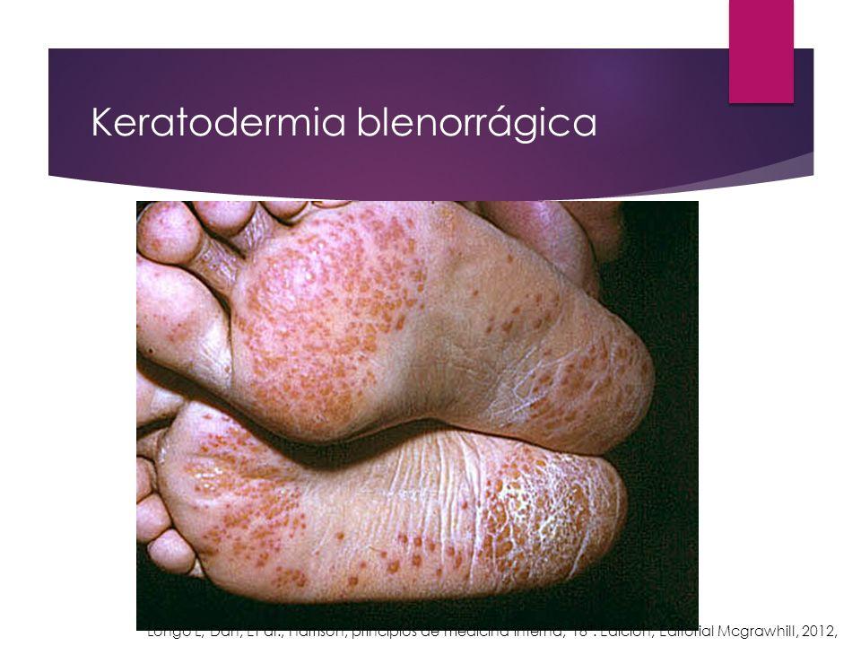 Keratodermia blenorrágica Longo L, Dan, Et al., Harrison, principios de medicina interna, 18ª. Edición, Editorial Mcgrawhill, 2012,
