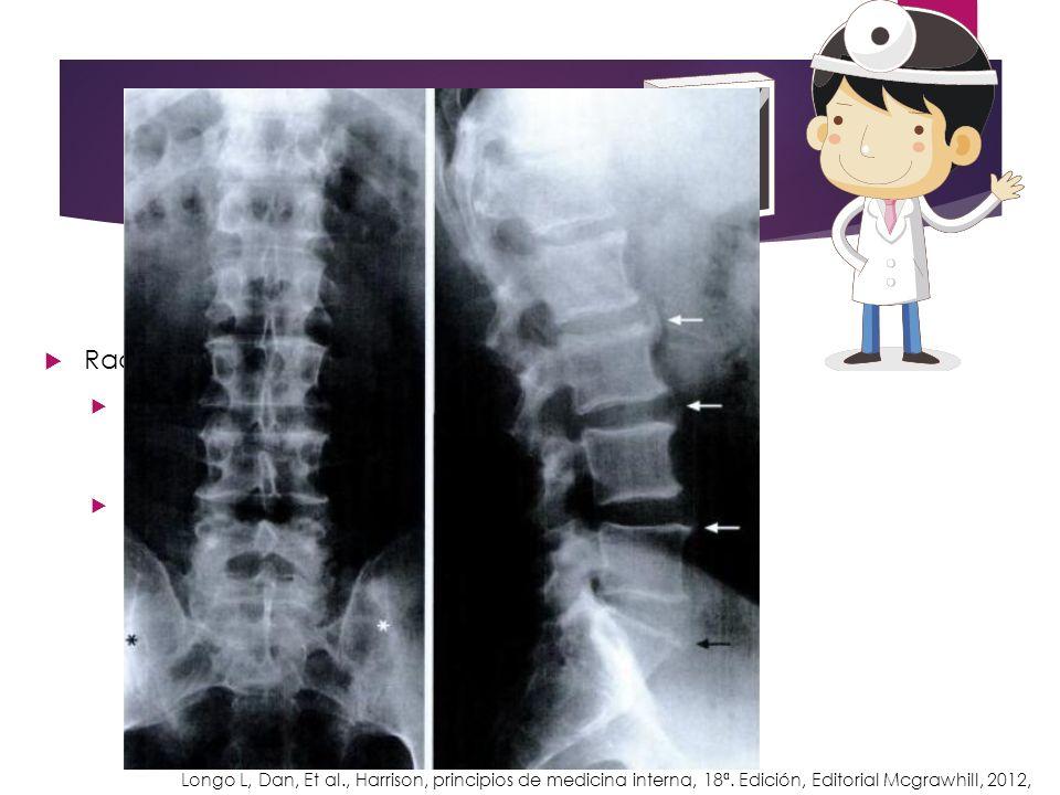 Radiológicamente, se distingue: Afectación axial: Sacroilítis asimétrica o unilateral, parasindesmofitos asimétricos, afectación de articulaciones int