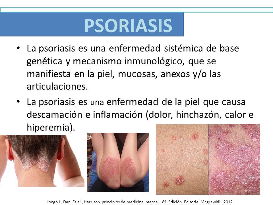 Psoriasis La psoriasis es una enfermedad sistémica de base genética y mecanismo inmunológico, que se manifiesta en la piel, mucosas, anexos y/o las ar