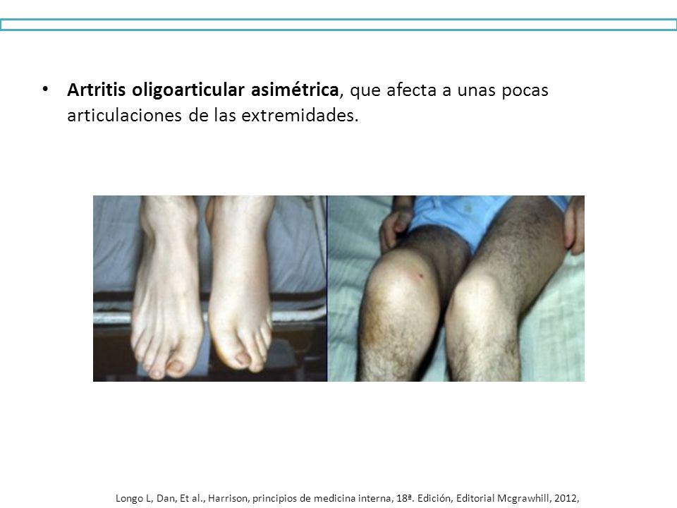 Artritis oligoarticular asimétrica, que afecta a unas pocas articulaciones de las extremidades. Longo L, Dan, Et al., Harrison, principios de medicina
