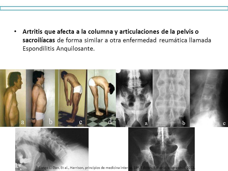Artritis que afecta a la columna y articulaciones de la pelvis o sacroilíacas de forma similar a otra enfermedad reumática llamada Espondilitis Anquil