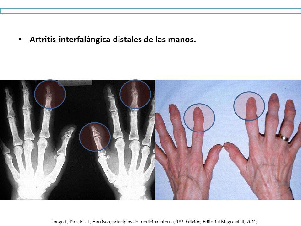 Artritis interfalángica distales de las manos. Longo L, Dan, Et al., Harrison, principios de medicina interna, 18ª. Edición, Editorial Mcgrawhill, 201