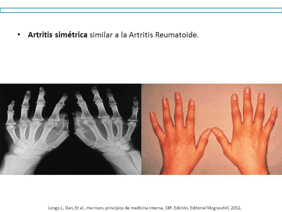 Artritis simétrica similar a la Artritis Reumatoide. Longo L, Dan, Et al., Harrison, principios de medicina interna, 18ª. Edición, Editorial Mcgrawhil