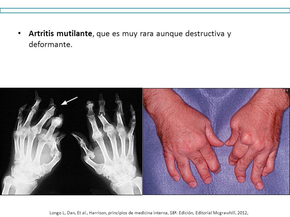 Artritis mutilante, que es muy rara aunque destructiva y deformante. Longo L, Dan, Et al., Harrison, principios de medicina interna, 18ª. Edición, Edi