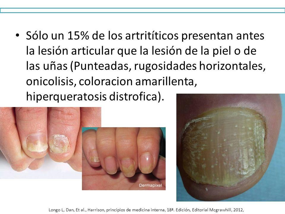 Sólo un 15% de los artritíticos presentan antes la lesión articular que la lesión de la piel o de las uñas (Punteadas, rugosidades horizontales, onico