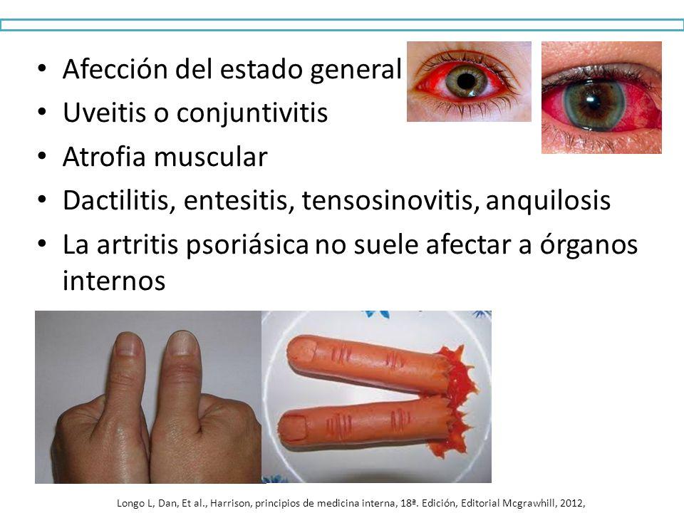 Afección del estado general Uveitis o conjuntivitis Atrofia muscular Dactilitis, entesitis, tensosinovitis, anquilosis La artritis psoriásica no suele