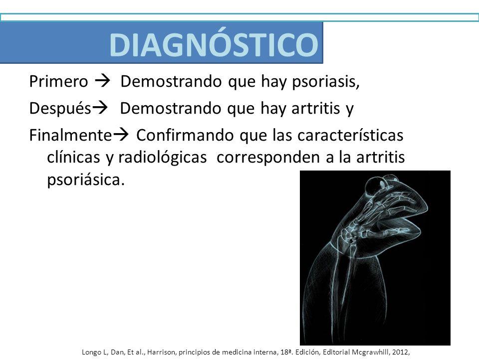 Diagnóstico Primero Demostrando que hay psoriasis, Después Demostrando que hay artritis y Finalmente Confirmando que las características clínicas y ra