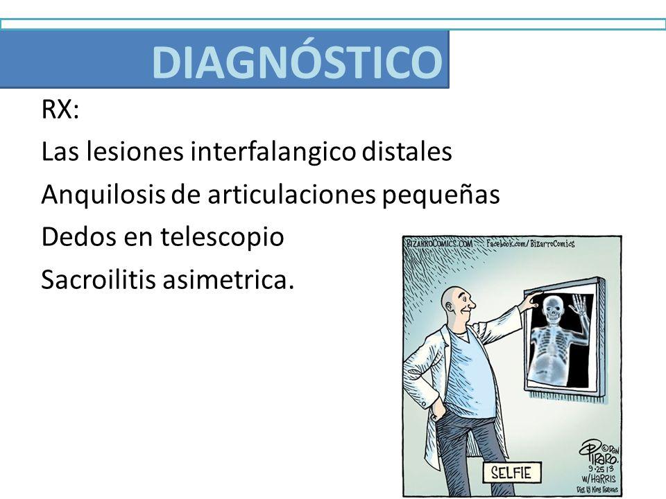 Diagnóstico RX: Las lesiones interfalangico distales Anquilosis de articulaciones pequeñas Dedos en telescopio Sacroilitis asimetrica. DIAGNÓSTICO