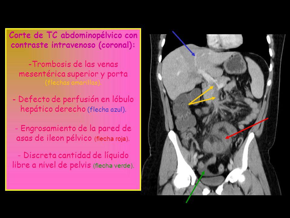 Corte de TC abdominopélvico con contraste intravenoso (coronal): -Trombosis de las venas mesentérica superior y porta (flechas amarillas). - Defecto d