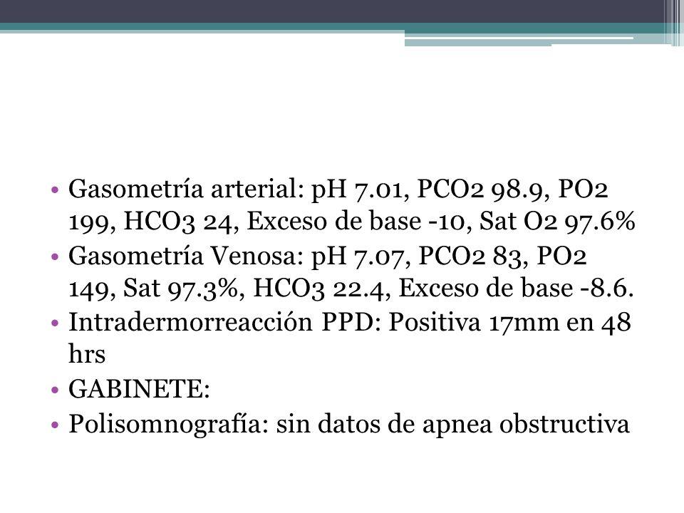 Gasometría arterial: pH 7.01, PCO2 98.9, PO2 199, HCO3 24, Exceso de base -10, Sat O2 97.6% Gasometría Venosa: pH 7.07, PCO2 83, PO2 149, Sat 97.3%, H
