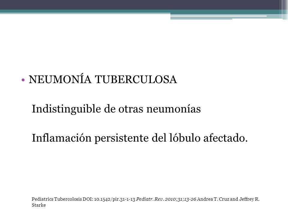 NEUMONÍA TUBERCULOSA Indistinguible de otras neumonías Inflamación persistente del lóbulo afectado. Pediatrics Tubercolosis DOI: 10.1542/pir.31-1-13 P