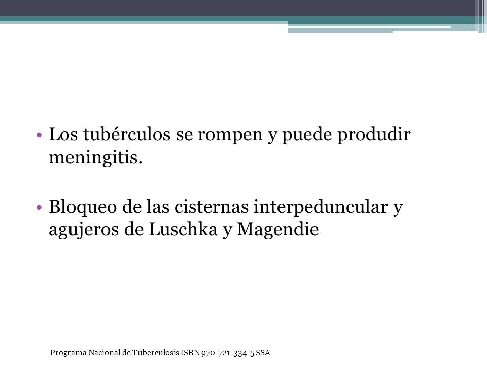 Los tubérculos se rompen y puede produdir meningitis. Bloqueo de las cisternas interpeduncular y agujeros de Luschka y Magendie Programa Nacional de T