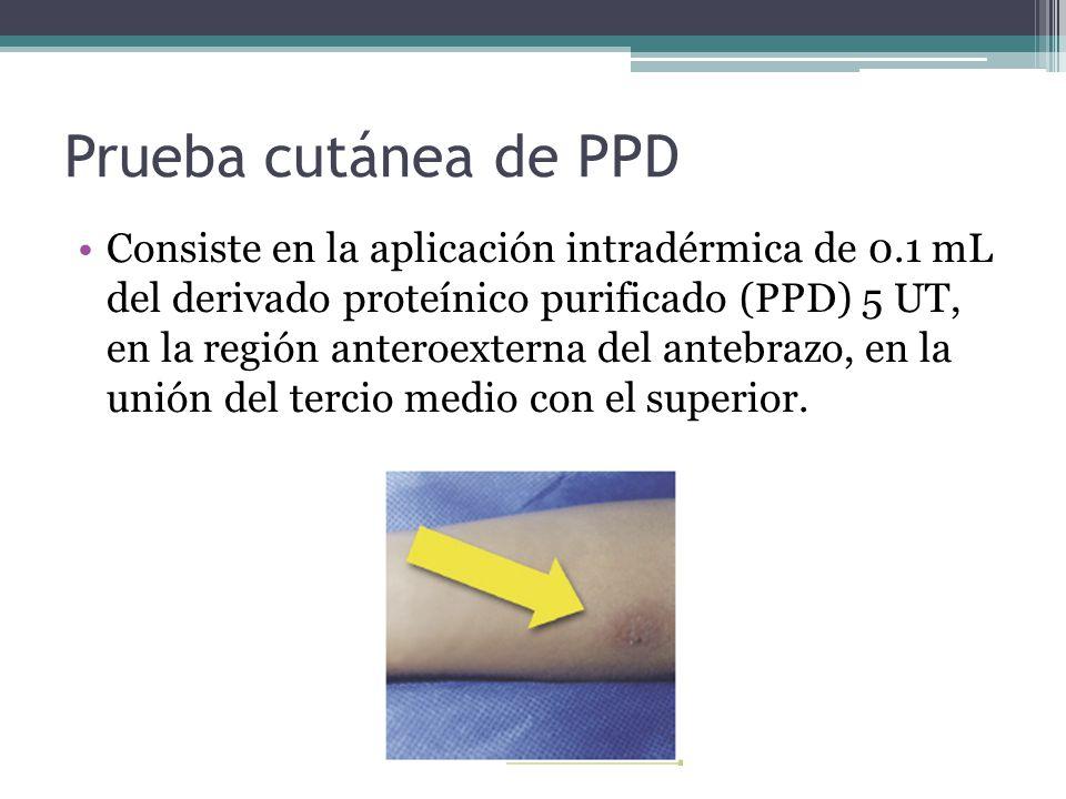 Prueba cutánea de PPD Consiste en la aplicación intradérmica de 0.1 mL del derivado proteínico purificado (PPD) 5 UT, en la región anteroexterna del a