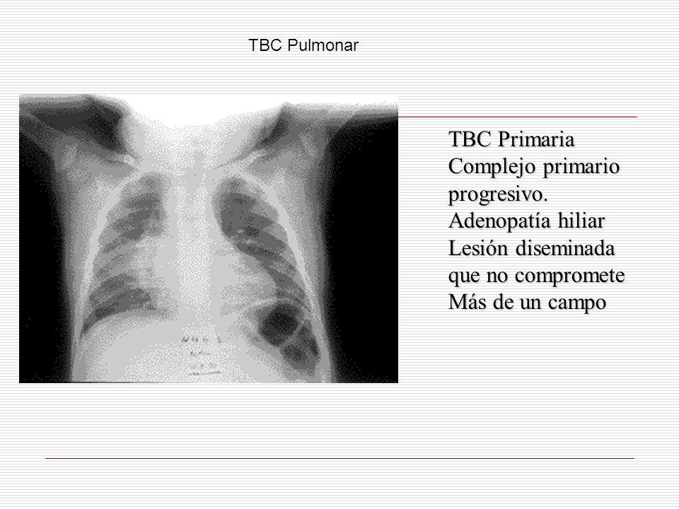 Complejo primario progresivo. Adenopatía hiliar Lesión diseminada que no compromete Más de un campo TBC Pulmonar
