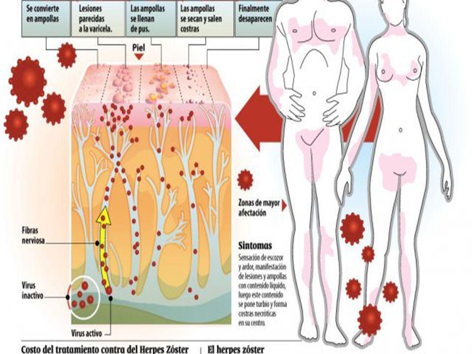 Incidencia del herpes zóster El herpes zóster llega a afectar a alrededor del 20% de la población.