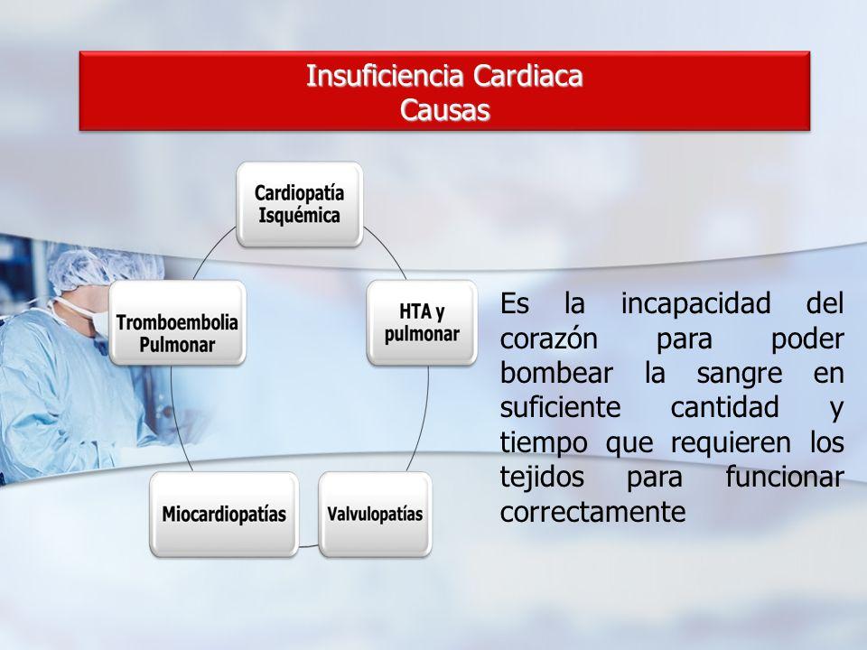 Insuficiencia Cardiaca Causas Es la incapacidad del corazón para poder bombear la sangre en suficiente cantidad y tiempo que requieren los tejidos par