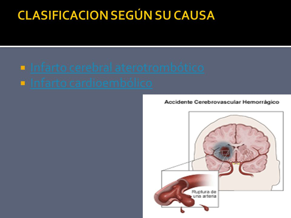 Infarto cerebral aterotrombótico Infarto cardioembólico