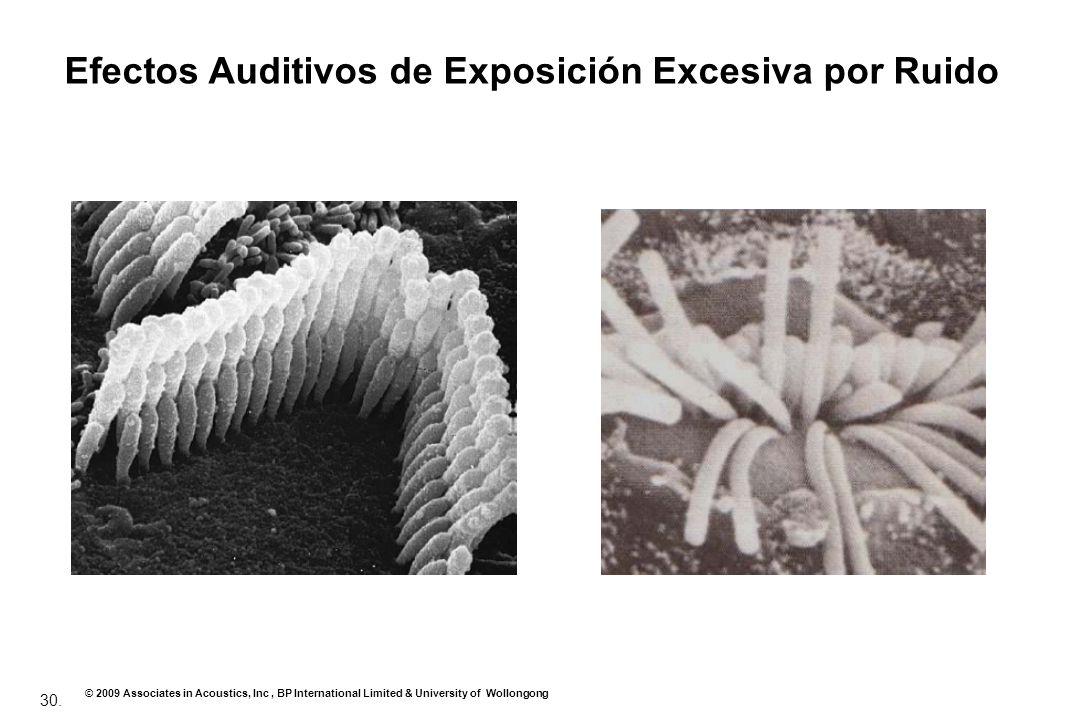 30. © 2009 Associates in Acoustics, Inc, BP International Limited & University of Wollongong Efectos Auditivos de Exposición Excesiva por Ruido
