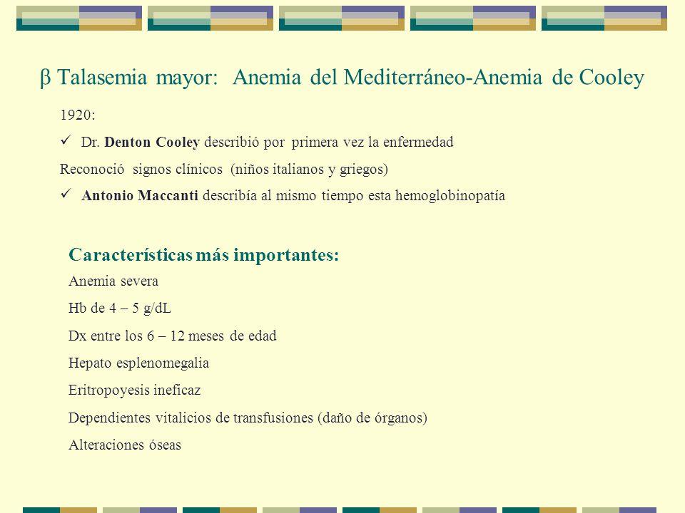 β Talasemia mayor: Anemia del Mediterráneo-Anemia de Cooley 1920: Dr.