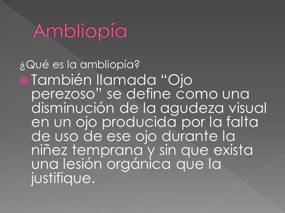 ¿Qué es la ambliopía? También llamada Ojo perezoso se define como una disminución de la agudeza visual en un ojo producida por la falta de uso de ese