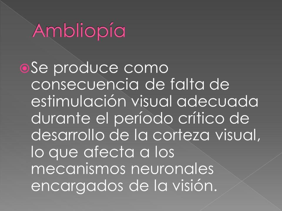 Se produce como consecuencia de falta de estimulación visual adecuada durante el período crítico de desarrollo de la corteza visual, lo que afecta a l