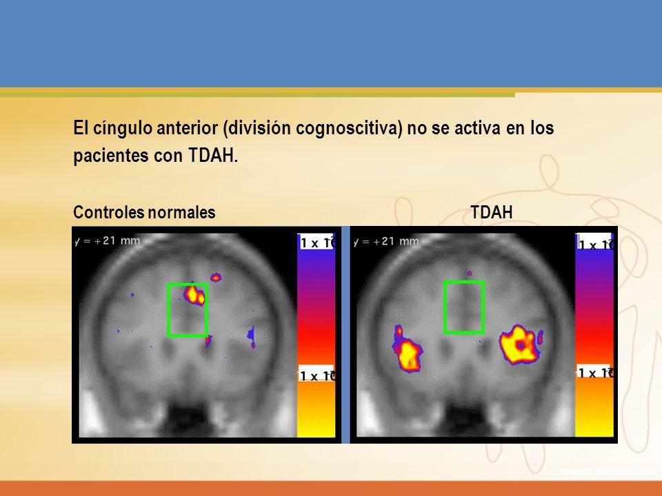 El cíngulo anterior (división cognoscitiva) no se activa en los pacientes con TDAH. Controles normalesTDAH Greenhill Bush y col., 1999