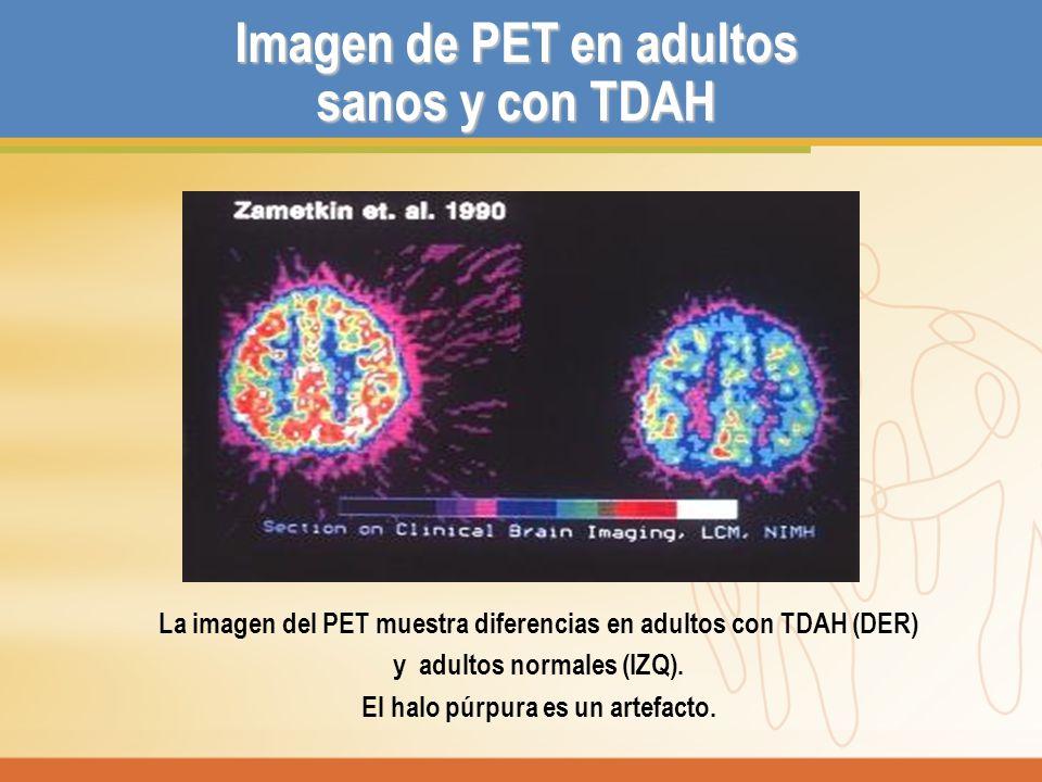 Imagen de PET en adultos sanos y con TDAH La imagen del PET muestra diferencias en adultos con TDAH (DER) y adultos normales (IZQ). El halo púrpura es