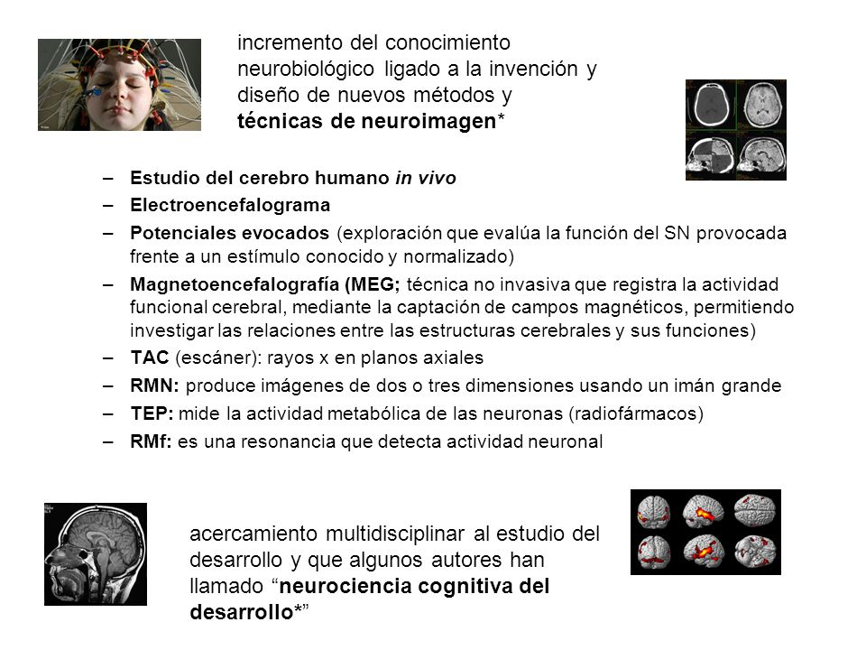 incremento del conocimiento neurobiológico ligado a la invención y diseño de nuevos métodos y técnicas de neuroimagen* acercamiento multidisciplinar a