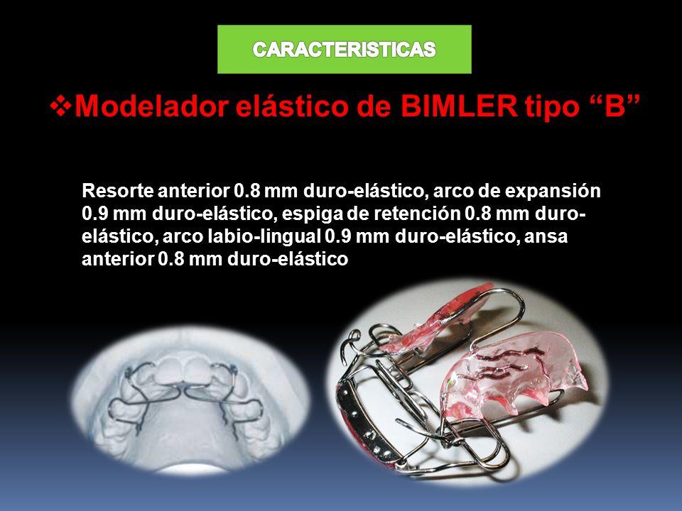 Modelador elástico de BIMLER tipo B Resorte anterior 0.8 mm duro-elástico, arco de expansión 0.9 mm duro-elástico, espiga de retención 0.8 mm duro- el
