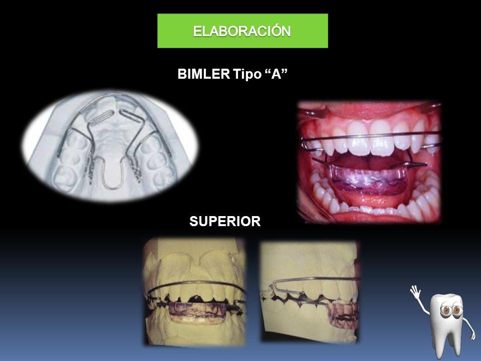 BIMLER Tipo A SUPERIOR