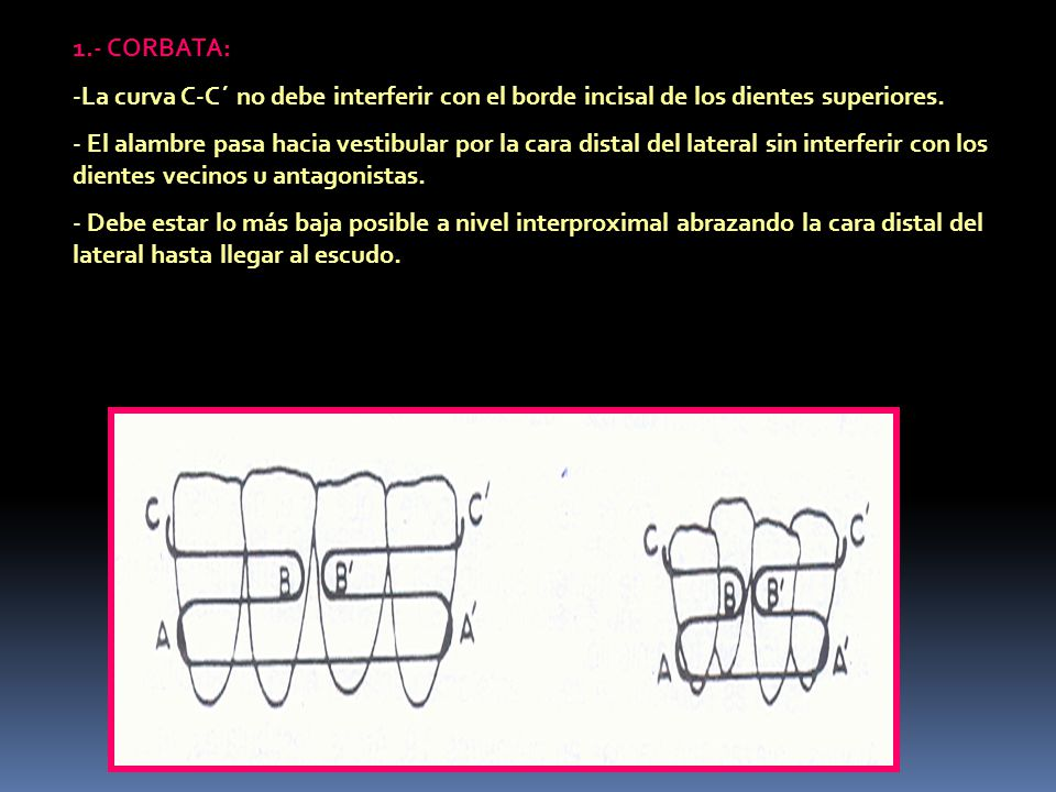 1.- CORBATA: -La curva C-C´ no debe interferir con el borde incisal de los dientes superiores. - El alambre pasa hacia vestibular por la cara distal d