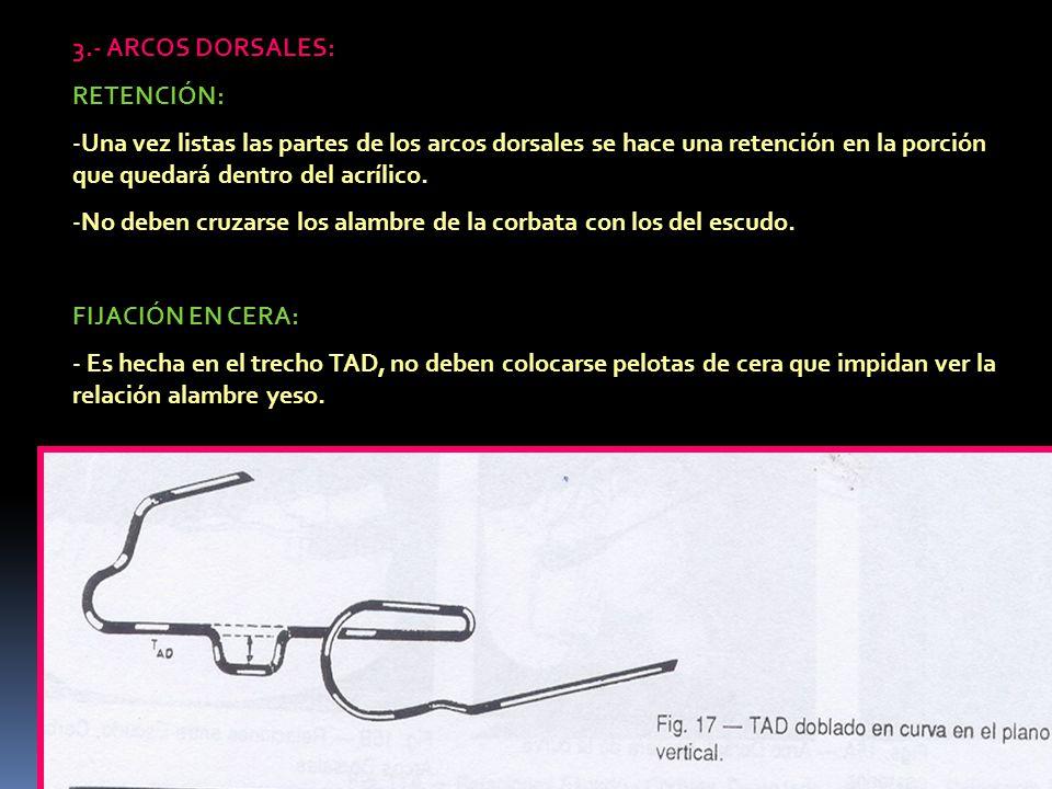 3.- ARCOS DORSALES: RETENCIÓN: -Una vez listas las partes de los arcos dorsales se hace una retención en la porción que quedará dentro del acrílico. -