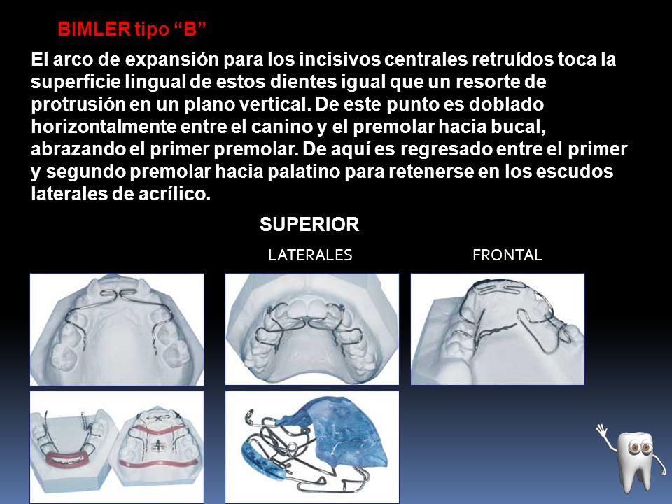 BIMLER tipo B El arco de expansión para los incisivos centrales retruídos toca la superficie lingual de estos dientes igual que un resorte de protrusi