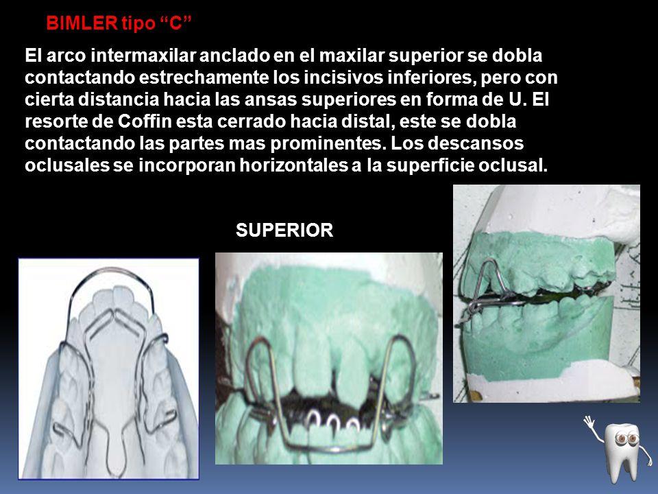 BIMLER tipo C El arco intermaxilar anclado en el maxilar superior se dobla contactando estrechamente los incisivos inferiores, pero con cierta distanc