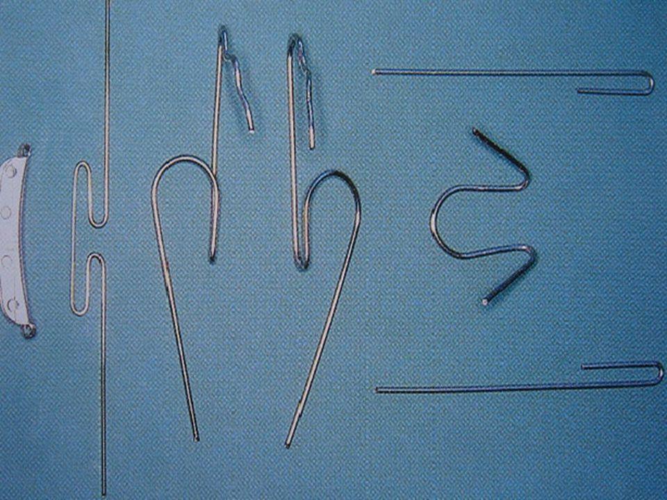 BIMLER tipo A Función: Tratamiento de incisivos protruidos Indicación: Este aparato es un aparato funcional grácil con dos pequeñas aletas de acrílico.