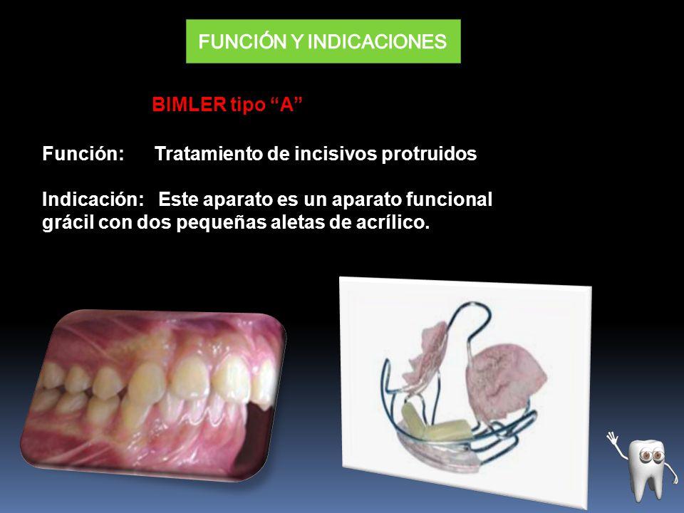 BIMLER tipo A Función: Tratamiento de incisivos protruidos Indicación: Este aparato es un aparato funcional grácil con dos pequeñas aletas de acrílico