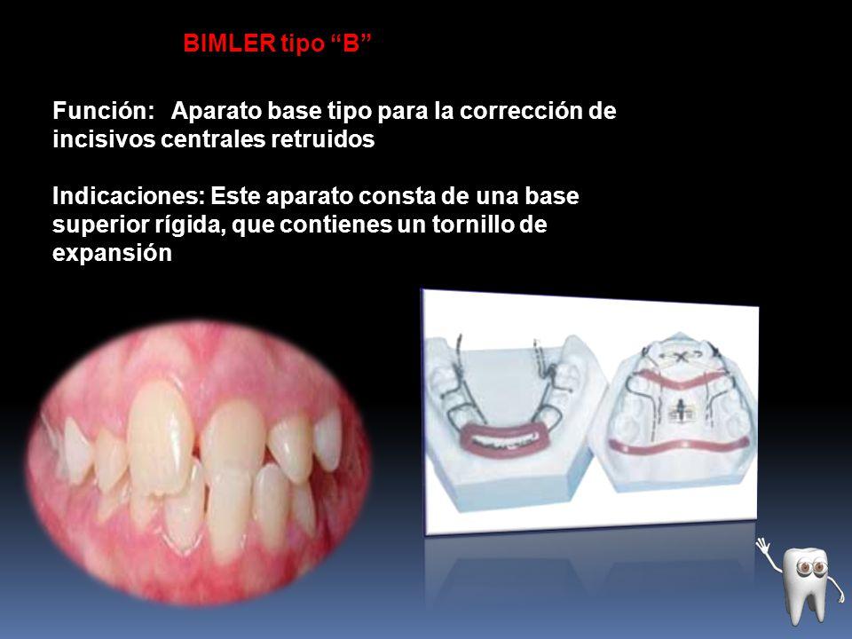 BIMLER tipo B El arco de expansión para los incisivos centrales retruídos toca la superficie lingual de estos dientes igual que un resorte de protrusión en un plano vertical.