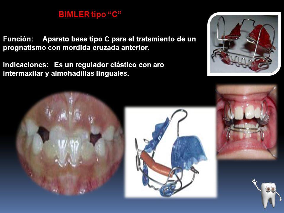 BIMLER tipo C Función: Aparato base tipo C para el tratamiento de un prognatismo con mordida cruzada anterior. Indicaciones: Es un regulador elástico