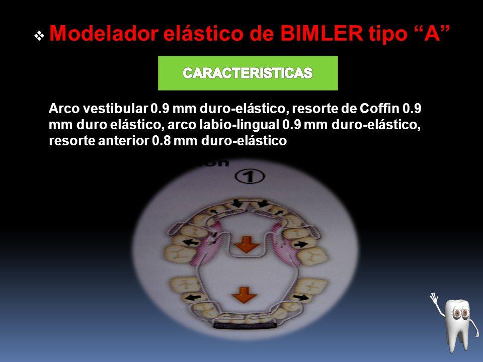 Modelador elástico de BIMLER tipo B Resorte anterior 0.8 mm duro-elástico, arco de expansión 0.9 mm duro-elástico, espiga de retención 0.8 mm duro- elástico, arco labio-lingual 0.9 mm duro-elástico, ansa anterior 0.8 mm duro-elástico