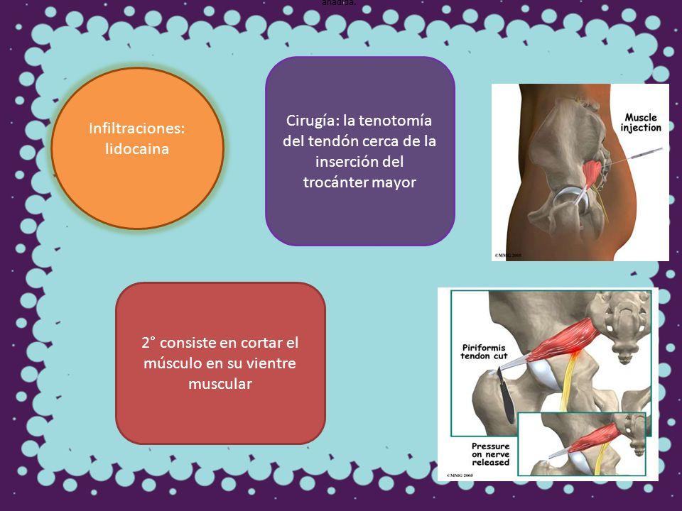 Infiltraciones: lidocaina Cirugía: la tenotomía del tendón cerca de la inserción del trocánter mayor 2° consiste en cortar el músculo en su vientre mu