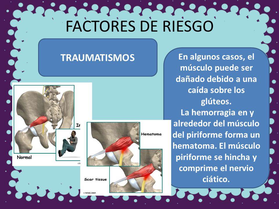 FACTORES DE RIESGO TRAUMATISMOS En algunos casos, el músculo puede ser dañado debido a una caída sobre los glúteos. La hemorragia en y alrededor del m