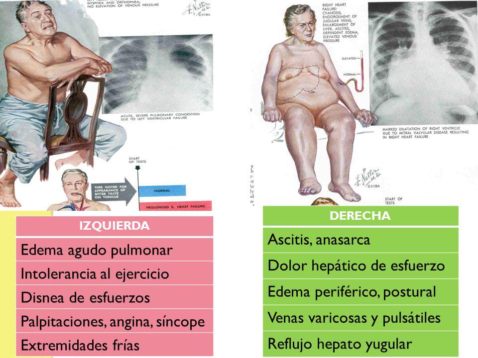 IZQUIERDA Edema agudo pulmonar Intolerancia al ejercicio Disnea de esfuerzos Palpitaciones, angina, síncope Extremidades frías DERECHA Ascitis, anasar