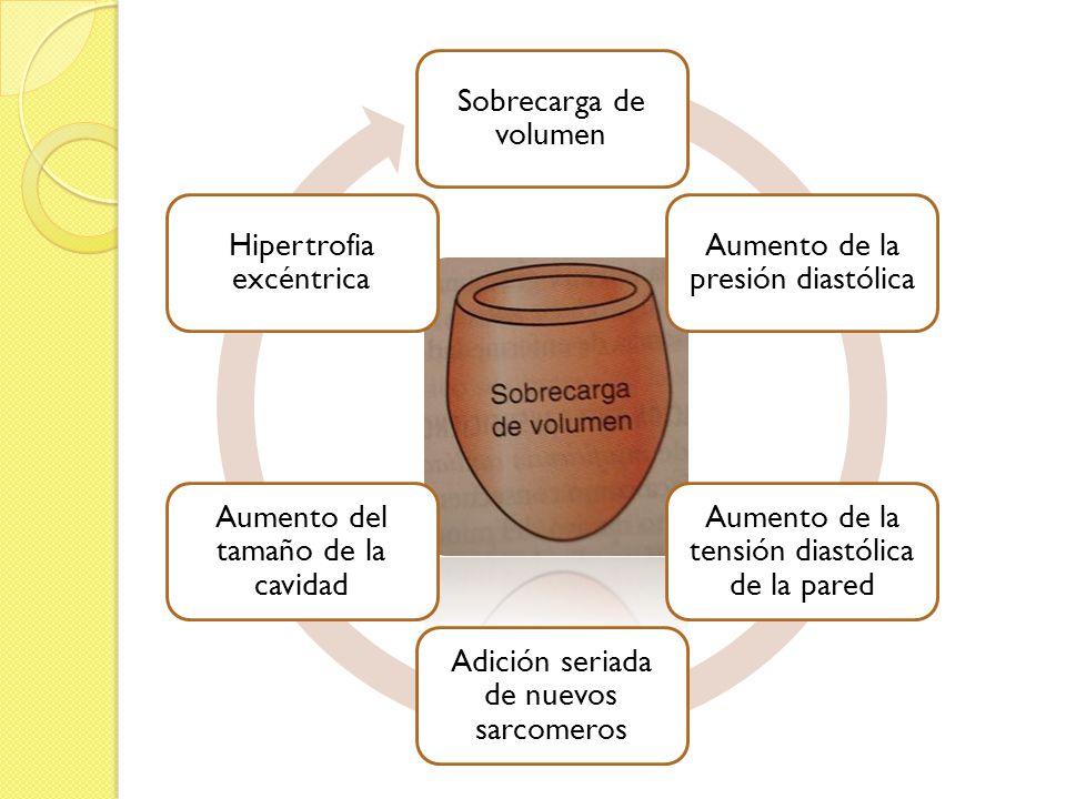 Sobrecarga de volumen Aumento de la presión diastólica Aumento de la tensión diastólica de la pared Adición seriada de nuevos sarcomeros Aumento del t