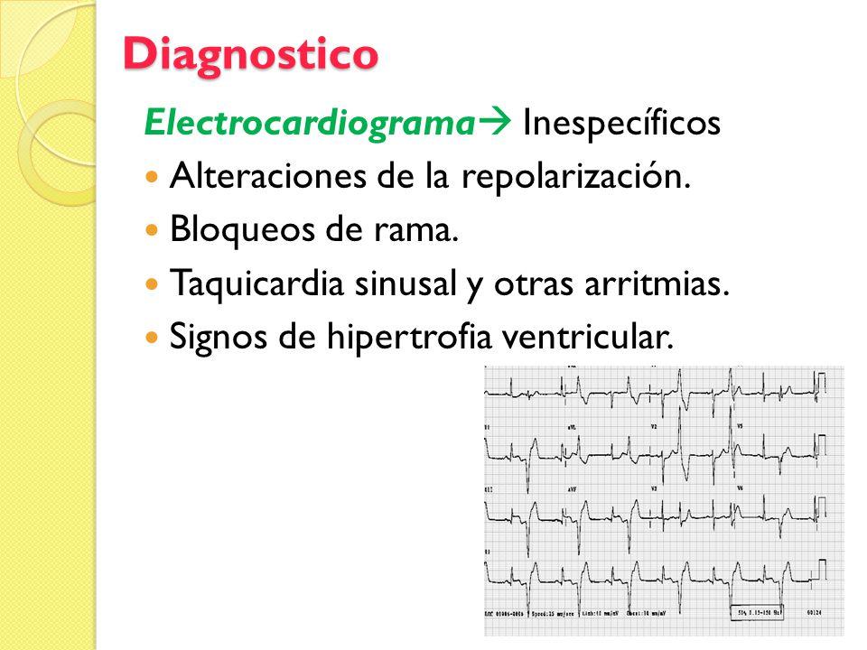 Diagnostico Electrocardiograma Inespecíficos Alteraciones de la repolarización. Bloqueos de rama. Taquicardia sinusal y otras arritmias. Signos de hip
