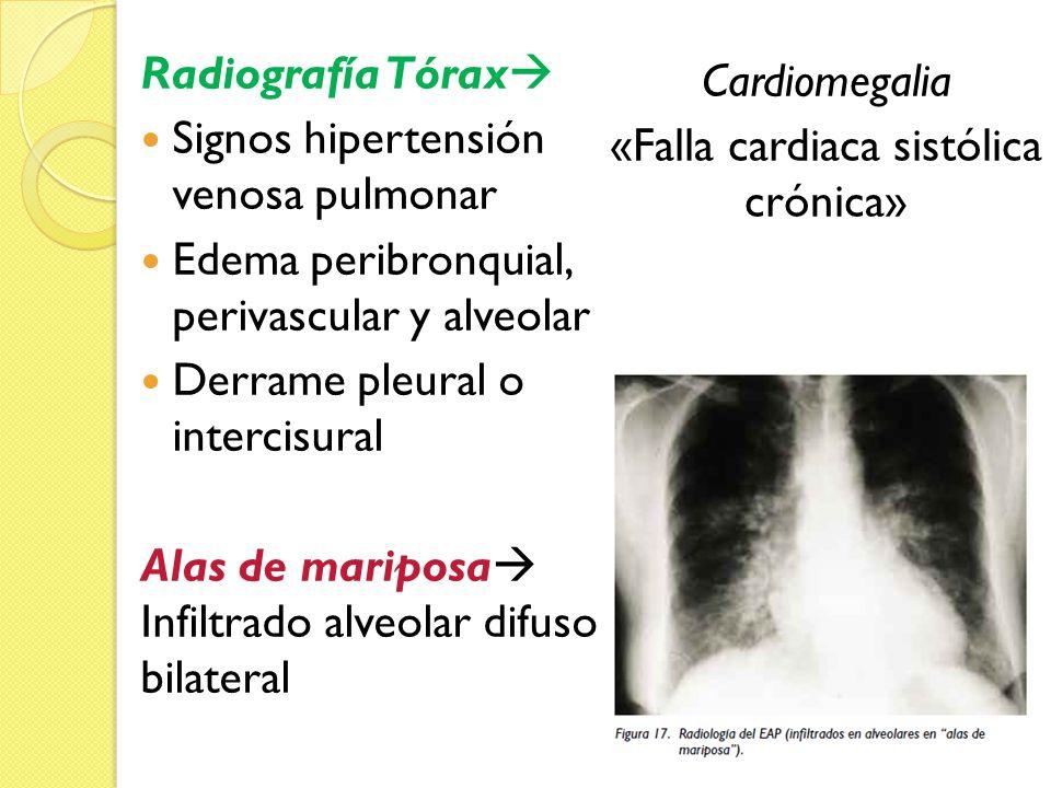 Radiografía Tórax Signos hipertensión venosa pulmonar Edema peribronquial, perivascular y alveolar Derrame pleural o intercisural Alas de mariposa Inf