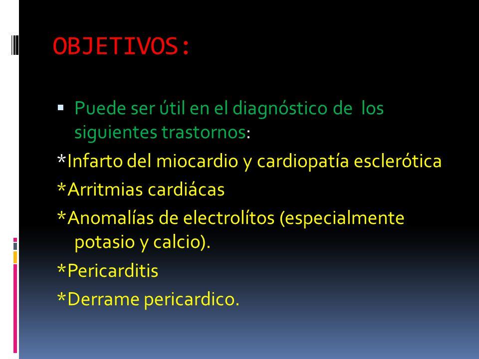 OBJETIVOS: Puede ser útil en el diagnóstico de los siguientes trastornos: *Infarto del miocardio y cardiopatía esclerótica *Arritmias cardiácas *Anomalías de electrolítos (especialmente potasio y calcio).