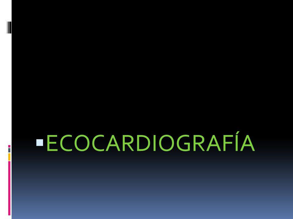 CONCEPTO: 1) Es energía acústica programada a secuencia para registrar los ciclos cardiacos en un osciloscopio.